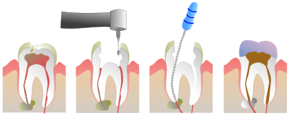 420px-Root_Canal_Illustration_Molar.svg.png