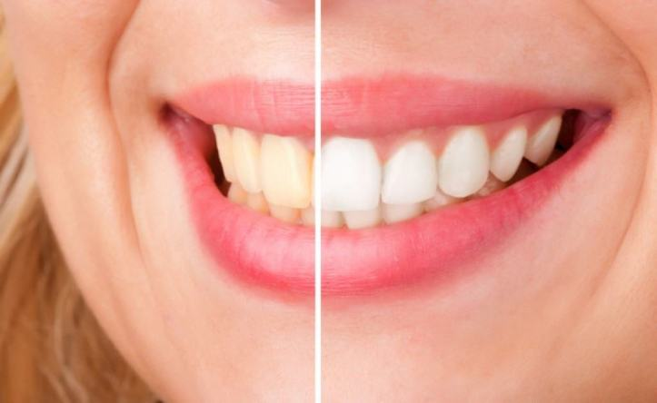 TEETH-WHITENING-680x418-1024x629